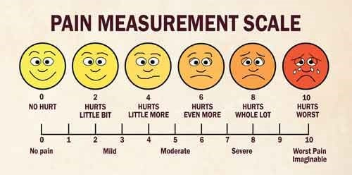 Migraine Treatment - Pain Scale