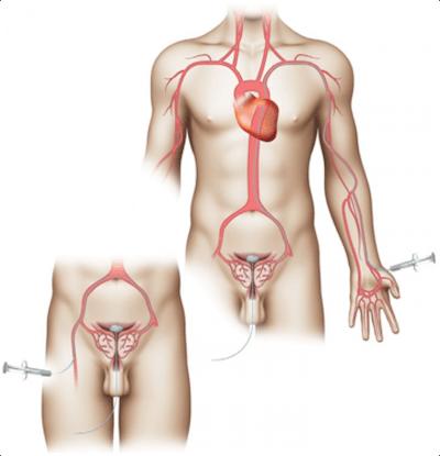 Prostate Artery Embolization Procedure