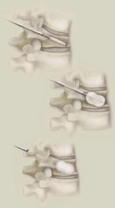 3 steps of kyphoplasty