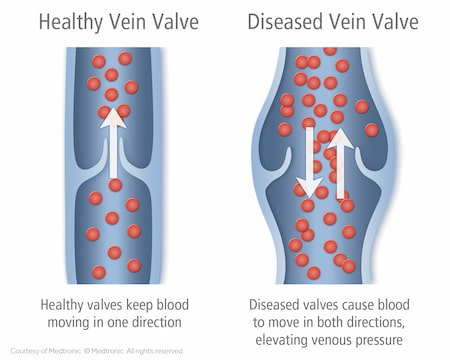 Healthy vs Diseased Veins
